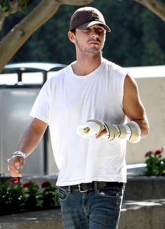 shia labeouf hand injury. Shia LaBeouf Hand Will Never